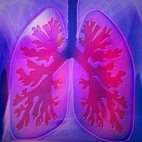 Respiratory infections including pneumonia kills 21 people every day in India